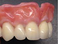 Acrylic dentures