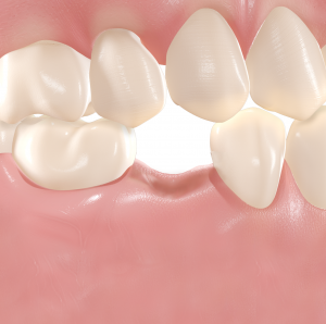 Single tooth gap treatment