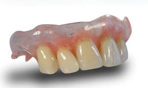 Valplast Flexible Denture