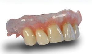 Valplast Flexible Denture