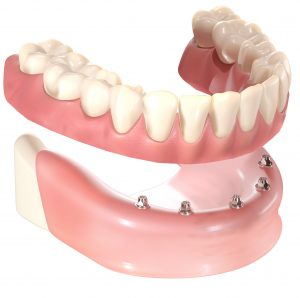Implants for denture wearers