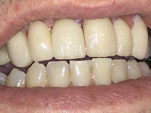 emax dental crown