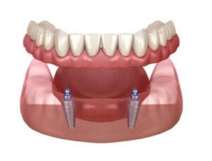 Implants for Dentures
