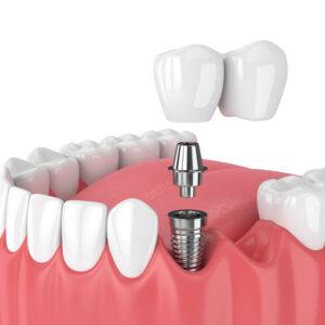 Single Implants